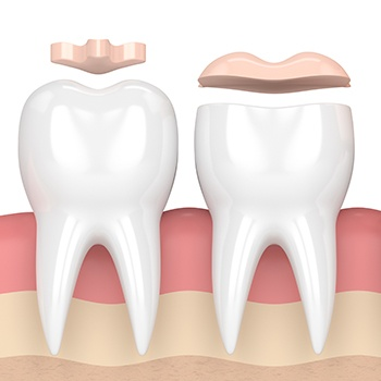 Aventura Dentist Inlays and onlays