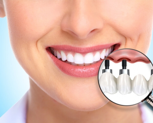 Dental Implants Aventura Dentist